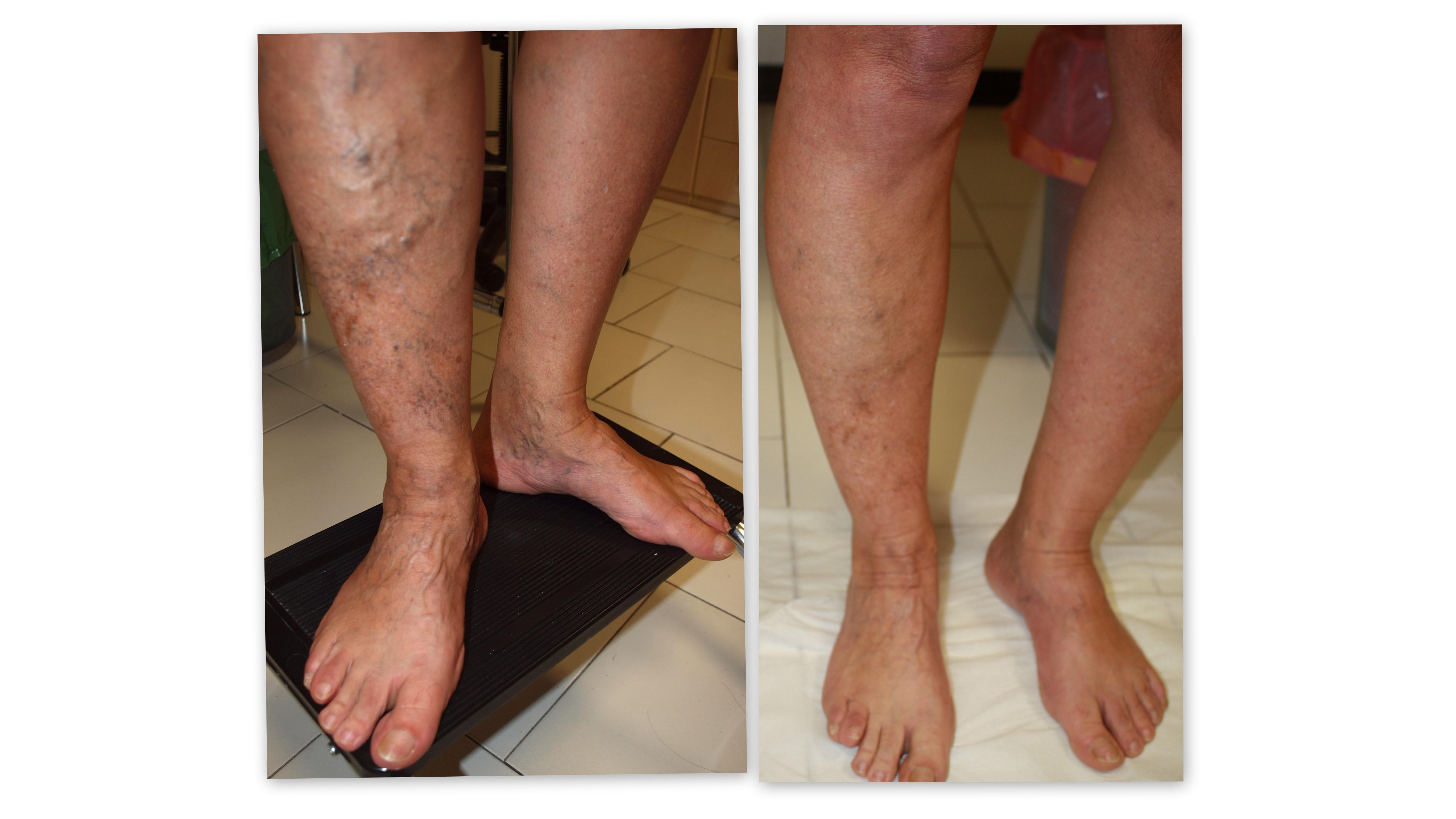 Eczema varicoso su un trattamento di gamba