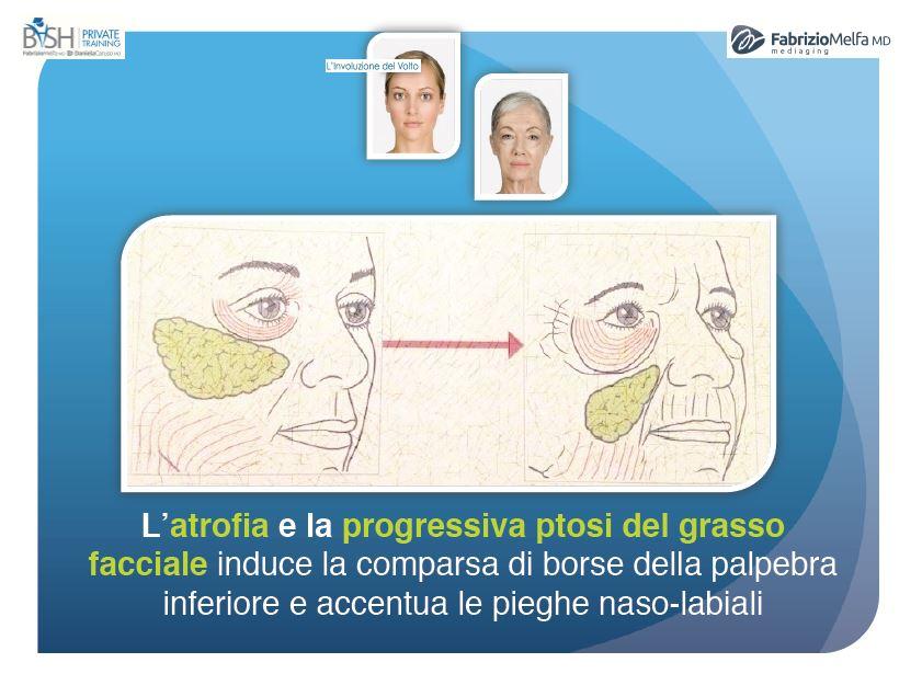 lifting-medico-3d-to-step-invecchiamento-come-involuzione-del-volto-3