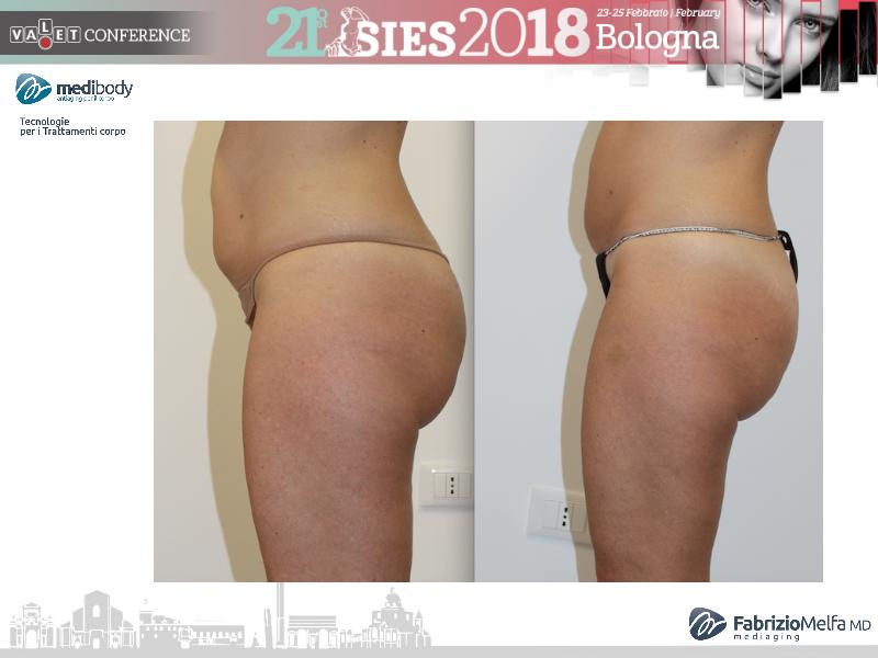 Screenshot-2018-4-20 Crioliposcultura SIES 2018 pptx(1)
