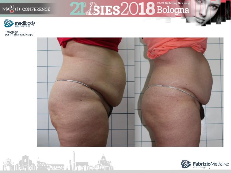 Screenshot-2018-4-20 Crioliposcultura SIES 2018 pptx(15)