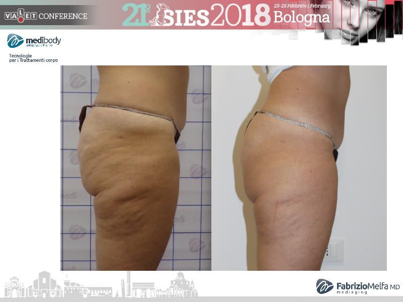 Screenshot-2018-4-20 Crioliposcultura SIES 2018 pptx(31)