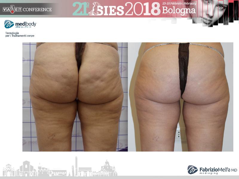 Screenshot-2018-4-20 Crioliposcultura SIES 2018 pptx(32)