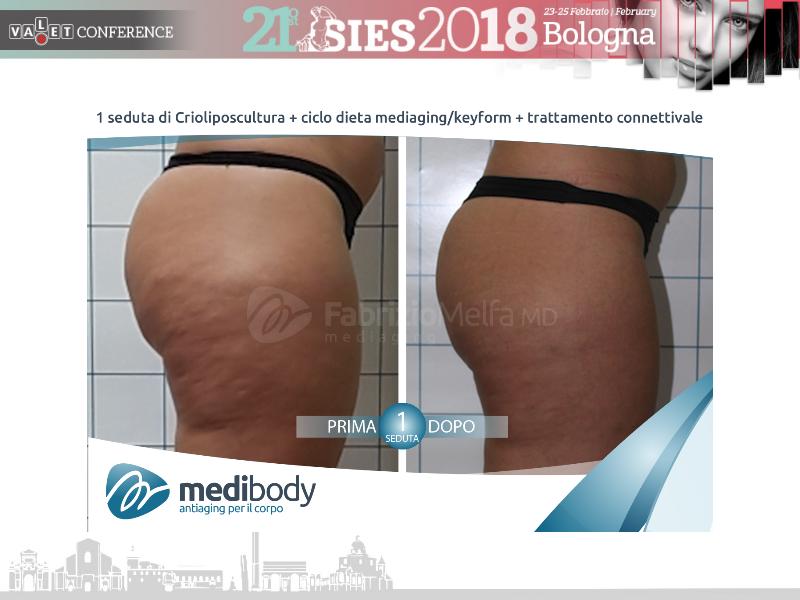 Screenshot-2018-4-20 Crioliposcultura SIES 2018 pptx(33)