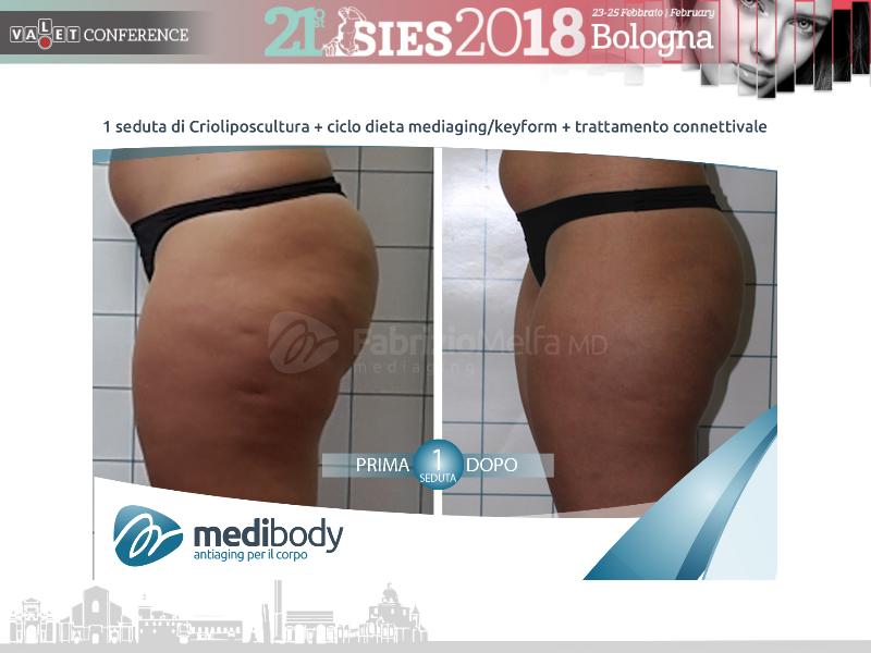 Screenshot-2018-4-20 Crioliposcultura SIES 2018 pptx(34)