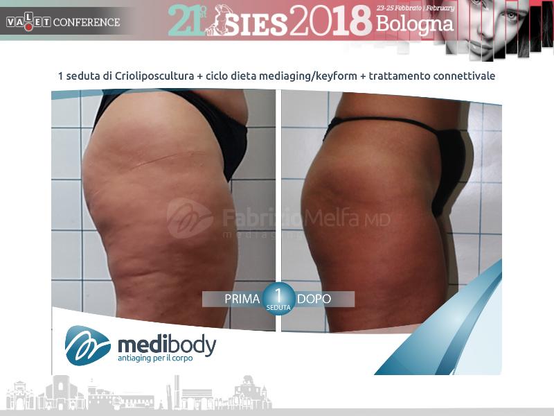 Screenshot-2018-4-20 Crioliposcultura SIES 2018 pptx(38)