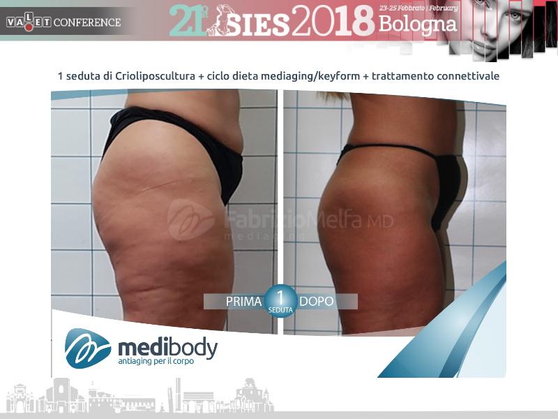 Screenshot-2018-4-20 Crioliposcultura SIES 2018 pptx(39)