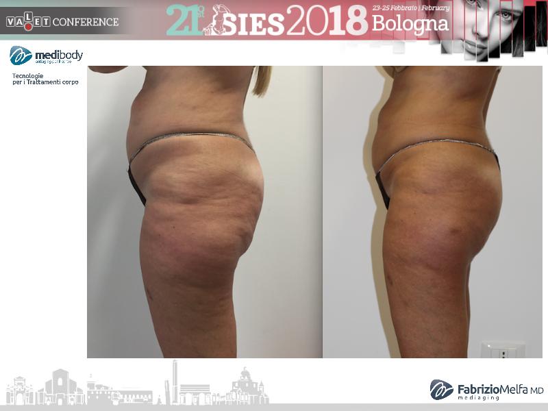 Screenshot-2018-4-20 Crioliposcultura SIES 2018 pptx(4)
