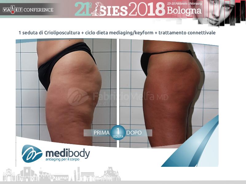 Screenshot-2018-4-20 Crioliposcultura SIES 2018 pptx(40)